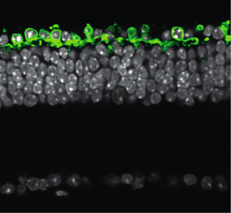 Cross section of a degenareted Retinitis pigmentosa retina. The genetically delivered light sensor is produced in the remaining outermost neural cell layer (green). In white, the nuclear layers of the retina.